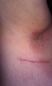 lymphnode surgery
