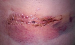 lympnode surgery1